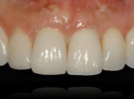 Capri_Implantologia_Lezioni