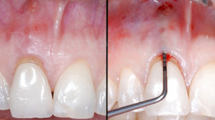 1 Visione clinica iniziale: l'elemento 11 si presenta con una fistola e il sondaggio parodontale evidenzia la totale assenza della parete ossea vestibolare