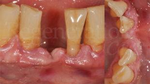 2 Atrofia orizzontale e verticale per esiti di malattia parodontale