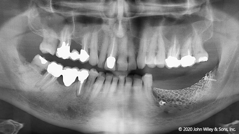 800x450 RF Griglie in titanio Yxoss CBR® per la rigenerazione ossea guidata di gravi difetti della cresta alveolare