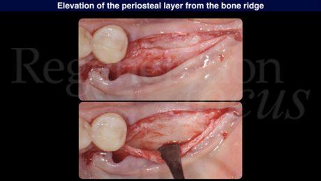 4 Sollevamento del lembo periostale dalla cresta ossea