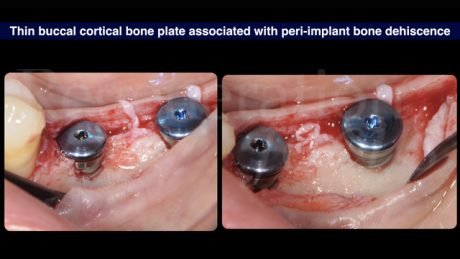 6 Cresta ossea sottile associata a deiscenza ossea peri-implantare