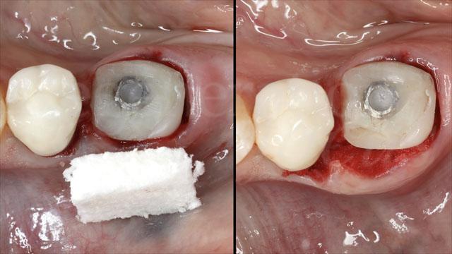 11 Dopo l'avvitamento dell'abutment customizzato, i tessuti molli peri-implantari sono stati scollati e tunnelizzati a livello vestibolare con opportuni strumenti. La matrice in collagene è stata quindi inserita al di sotto del lembo a busta, adeguatamente rilasciato