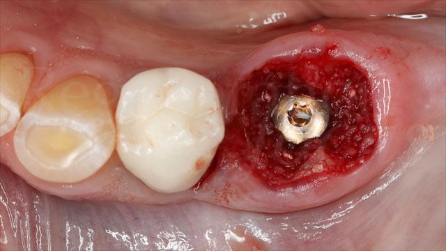 9 Il gap tra l'impianto post-estrattivo e le pareti ossee è stato riempito con innesto di osso omologo
