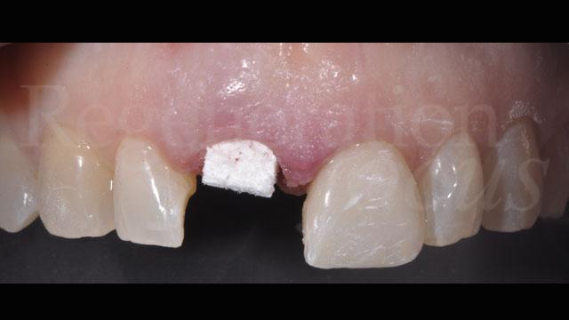 Inserimento nel gap vestibolare di Bio-Oss® Collagen