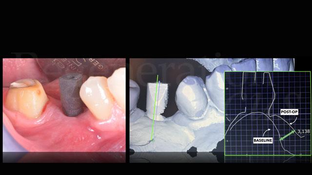 Dopo 3 settimane di attesa viene presa l'impronta con scanner intraorale e viene confezionata una corona protesica in zirconia-ceramica. Il file dell'impronta viene sovrapposto a scansione preoperatoria per valutare l'entità dell'incremento tissutale
